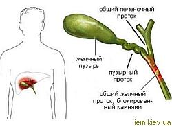 Желчекаменная болезнь при беременности