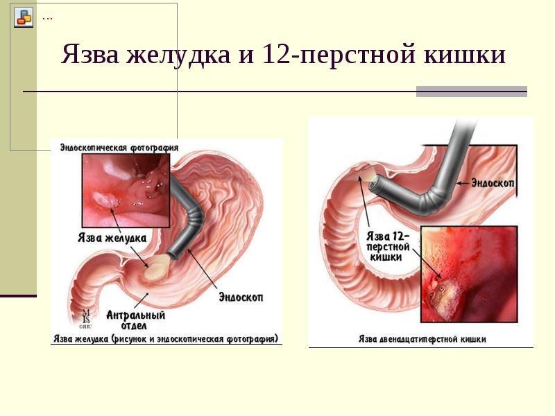 меню для лечения гастрита с повышенной кислотностью